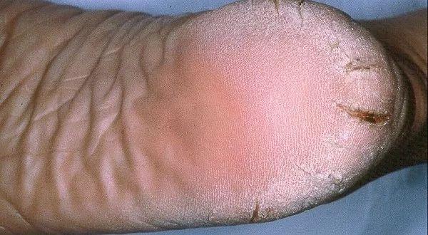 VERDADERO MILAGRO! Este remedio cura los talones agrietados, callos y venas varicosas en sólo 10 días!