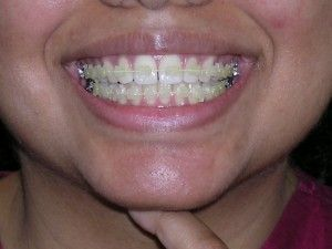 There are so many different types of braces!