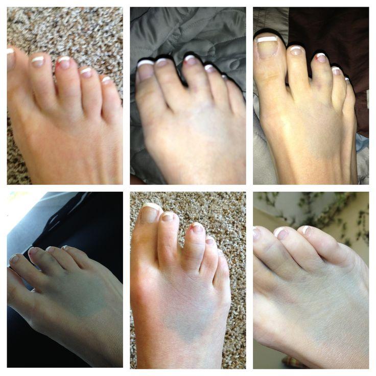 My broken toes?!?!