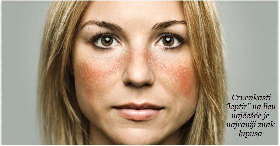 lupus bolest simptomi | lečenje | prognoza ŠTA JE LUPUS ?