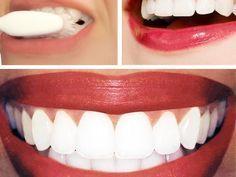 Diş Beyazlatma Yöntemleri Karbonat Kullanarak
