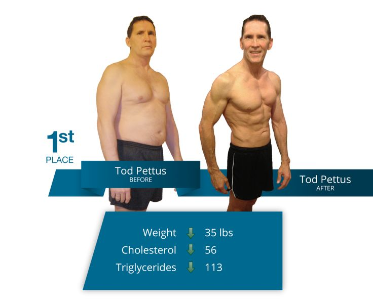 New fda approved weight loss procedures picture 2