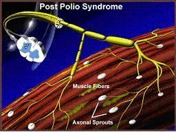 Post-Polio Syndrome--Symptoms include slowly progressive muscle weakness, unaccstomed fatigue, at times, muscle atrophy, pain and weakness in swallowing muscles, depression and sleep apnea.