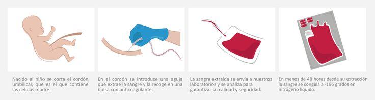 Las células madre de cordón umbilical no suscitan conflictos éticos y son muy fáciles de obtener. #célulasmadre #investigación #salud