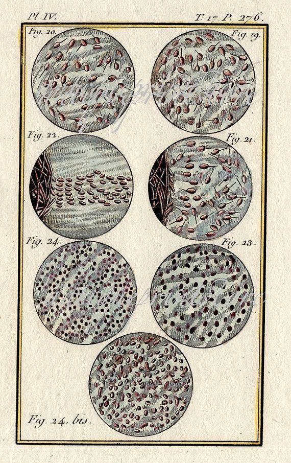 1799. Sperm assortment under microscope.