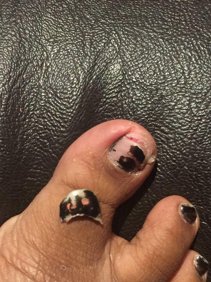 Half my toenail fell off (no gore)