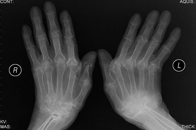 Artrite reumatoide, in Australia sperimentato con successo un 'vaccino' risolutore