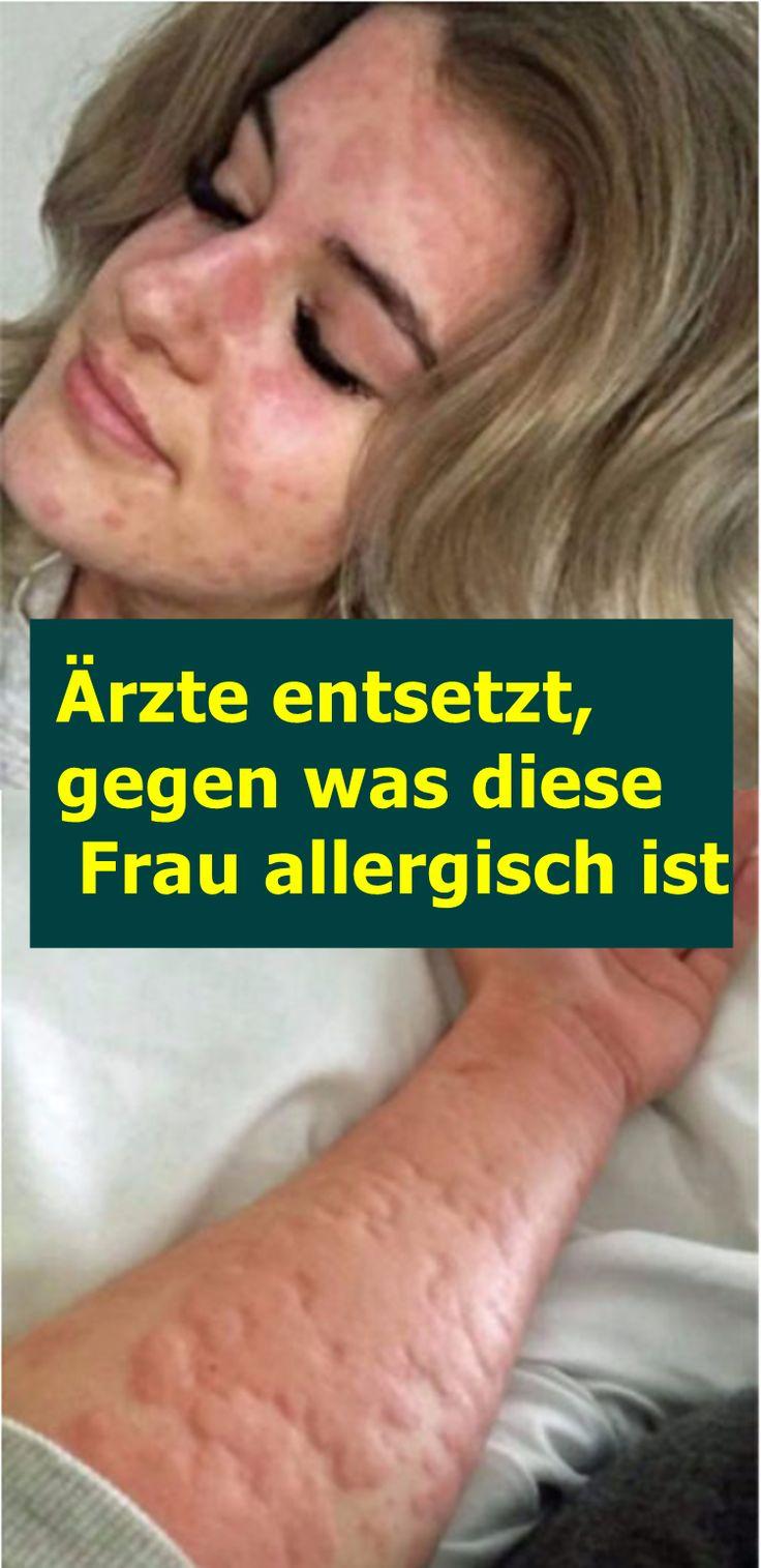 Ärzte entsetzt, gegen was diese Frau allergisch ist | isfurano!