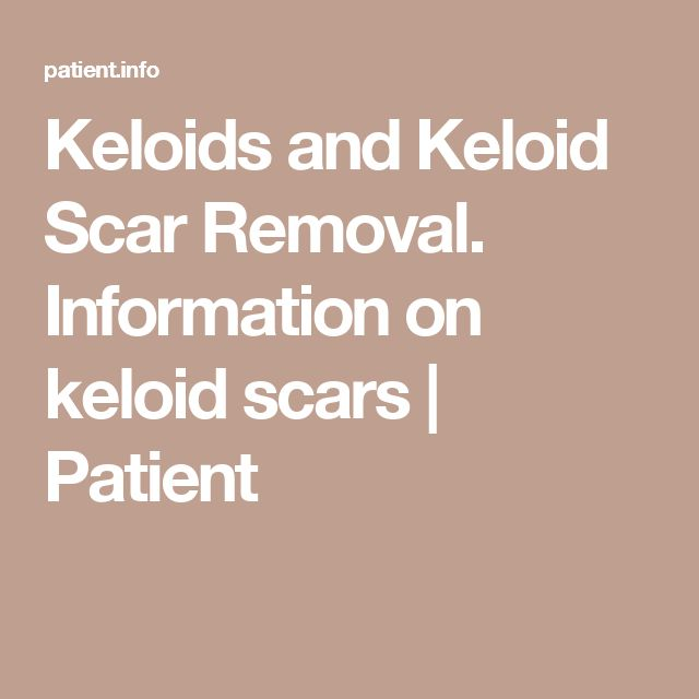 Keloids and Keloid Scar Removal. Information on keloid scars | Patient