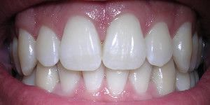 3 metodi naturali sbiancare denti