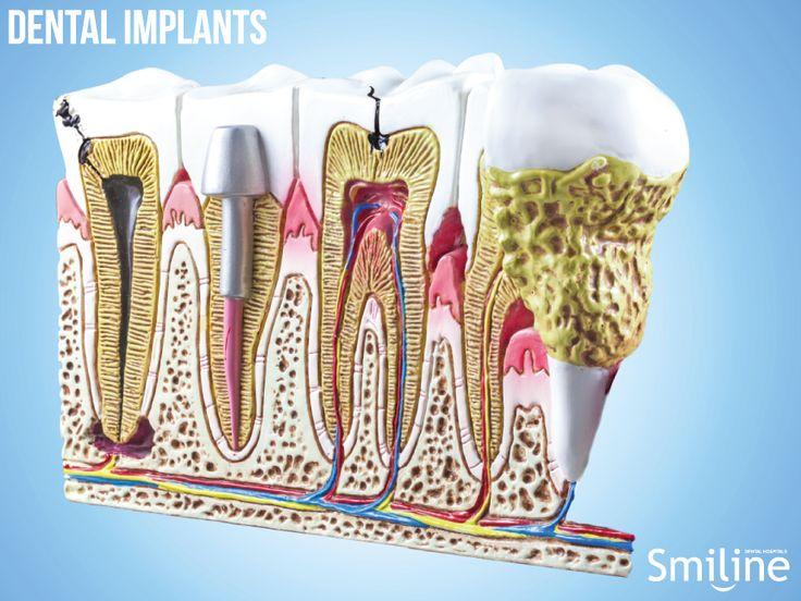 Dental implants are used to replace the roots of missing teeth. They are usually made of titanium. They have a success rate of up to 98% and can last a lifetime with proper care.