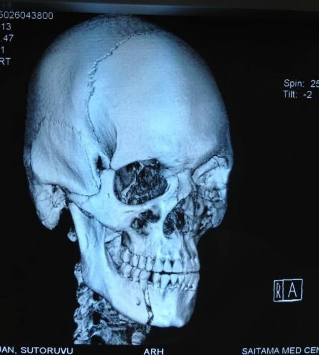 Mark Hunt broke Stefan Struve's jaw at UFC on Fuel 8