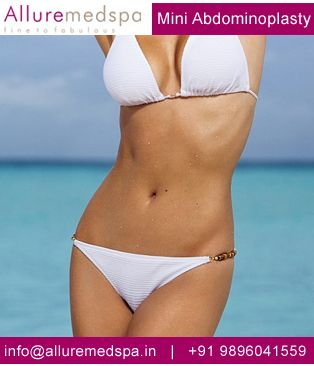 Advantage served by mini tummy tuck is faster recovery process and less complicated surgery.
