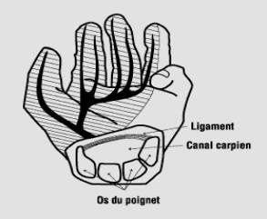 Canal Carpien vous apporte son savoir faire pour chirurgie du poignet reims ainsi que chirurgie du coude reims mais �galement chirurgie de l'épaule reims et doigt à ressaut reims mais aussi Plaie à la mains reims