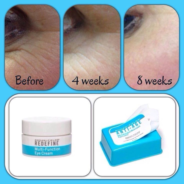 """Fellow R+F Consultant, Shannon Scott, is beyond happy she added our Multi-Function Eye Cream and Eye Cloths to her daily regimen ...""""I had NO idea just how bad my crows feet really were until I made this before and after. WOW!"""" I personally use BOTH products each day. Love those peppy peptides!"""