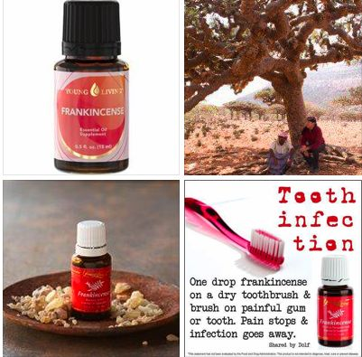 Frankincense for tooth infections