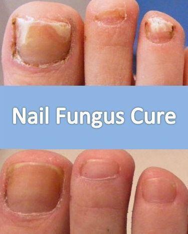 Nail Fungus Cure | Zehennagelpilz, Nagelpilz, Nagelpilz