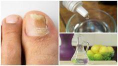 Fabrica tu propio rompe hongos natural para las uñas: ingredientes como el agua oxigenada, el alcohol etílico al 90% y el prodigioso vinagre blanco.  Los tres son conocidos antisépticos y antifúngicos naturales que sirven para tratar varios tipos de heridas y condiciones cutáneas.