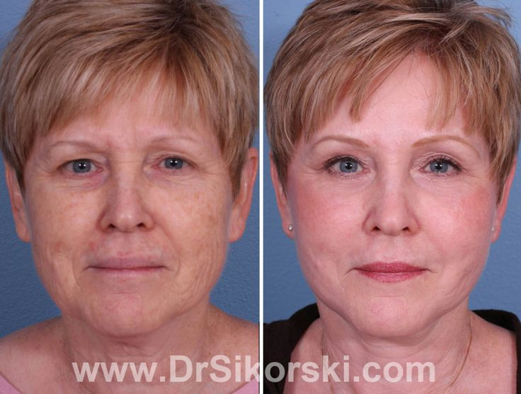 Erbium, Sciton, Sciton Erbium, Erbium Laser, Erbium Laser Treatment, Erbium before and after, Erbium laser photos, Erbium laguna niguel, Erbium orange county, Naural Image OC