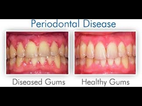 Just RUB THESE 2 OILS ON YOUR GUMS AND TEETH AND YOU WONT NEED A DENTIST ANYMORE Just RUB THESE 2 OILS ON YOUR GUMS AND TEETH AND YOU WONT NEED A DENTIST ANYMORE  Eugenol a compound found in clove oil has been utilized for a drawn out stretch of time in d http://reviewscircle.com/health-fitness/dental-health/natural-teeth-whitening/