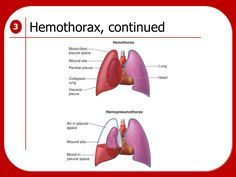 Hemothorax Collection of blood in the pleural space Suspect if the following are seen: –Signs and symptoms of shock –Decreased breath sounds on affected side If both air and blood are present in the pleural space, it is a hemopneumothorax.