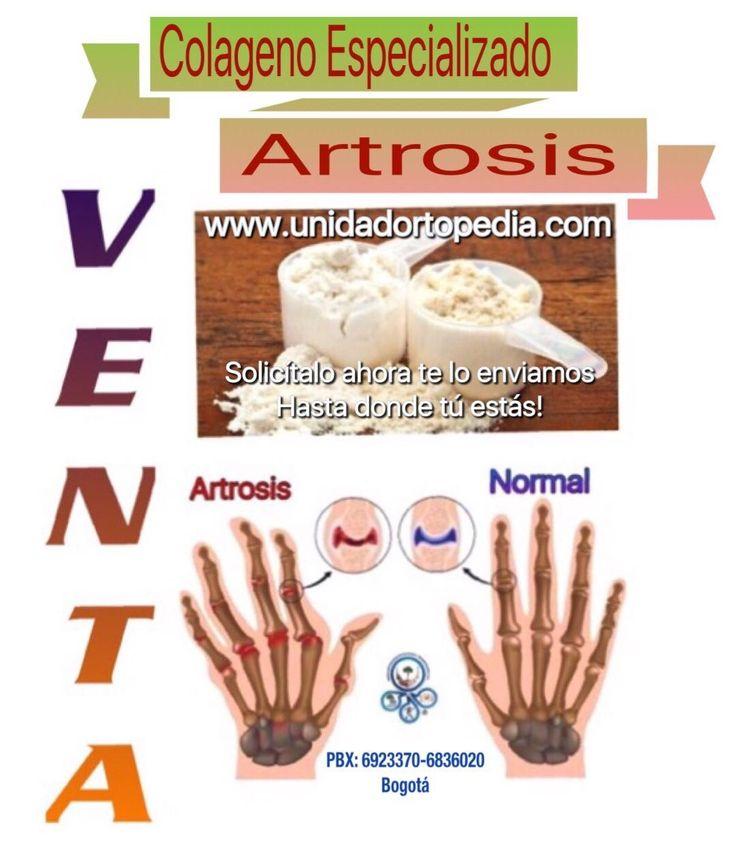 Venta de Colageno contra la artrosis. la Unidad Especializada en Ortopedia y Traumatologia www.unidadortopedia.com PBX: +571-6923370, Móvil: +57-3175905407, Bogotá, Colombia.