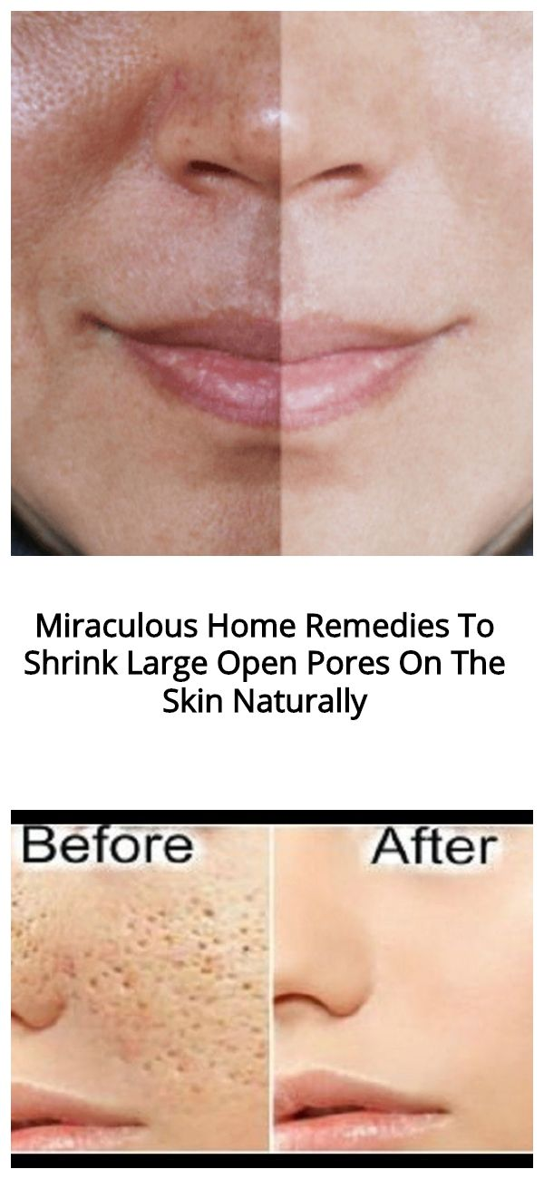 Miraculous Home Remedies To Shrink Large Open Pores On The Skin Naturally