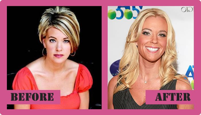 Kate Gosselin Plastic surgery Before And After Kate Gosselin Plastic Surgery #KateGosselinPlasticSurgery #KateGosselin #gossipmagazines