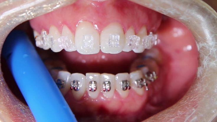 La ortodoncia invisible sirve como alternativa cosmética a la ortodoncia tradicional de metal mezclándose más con el color natural de los dientes y una apariencia menos visible o oculta. Hay varios tipos de ortodoncia invisible y típicamente se se hacen de cerámica o plástico y funcionan de una manera similar a la ortodoncia tradicional.