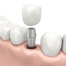 Dental Implants now available in our www.drdrower.com dentist office