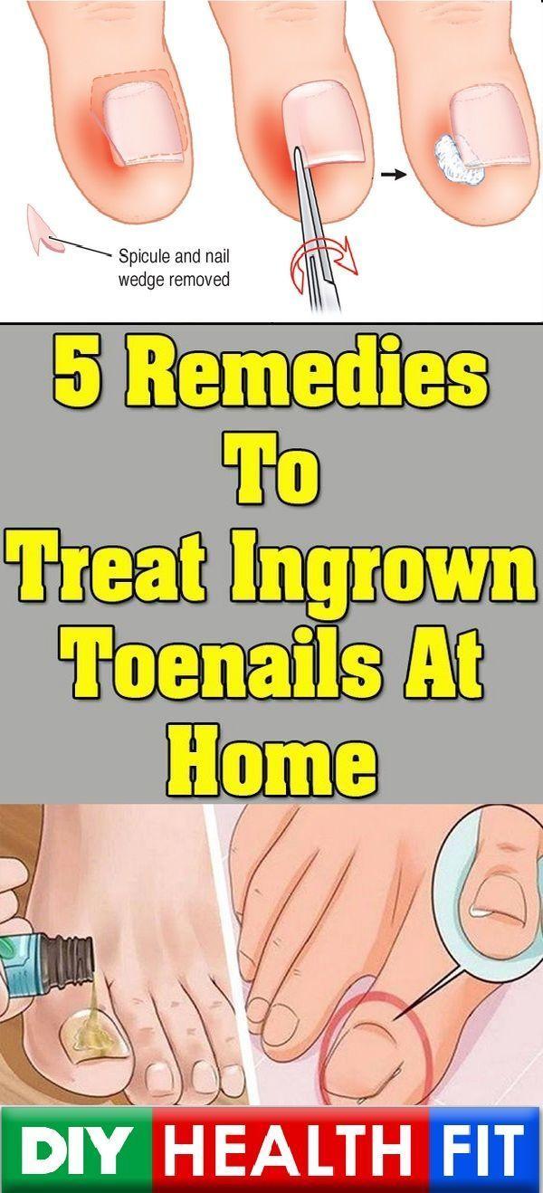 5 Remedies To Treat Ingrown Toenails At Home | Nail Fungus Severe ...