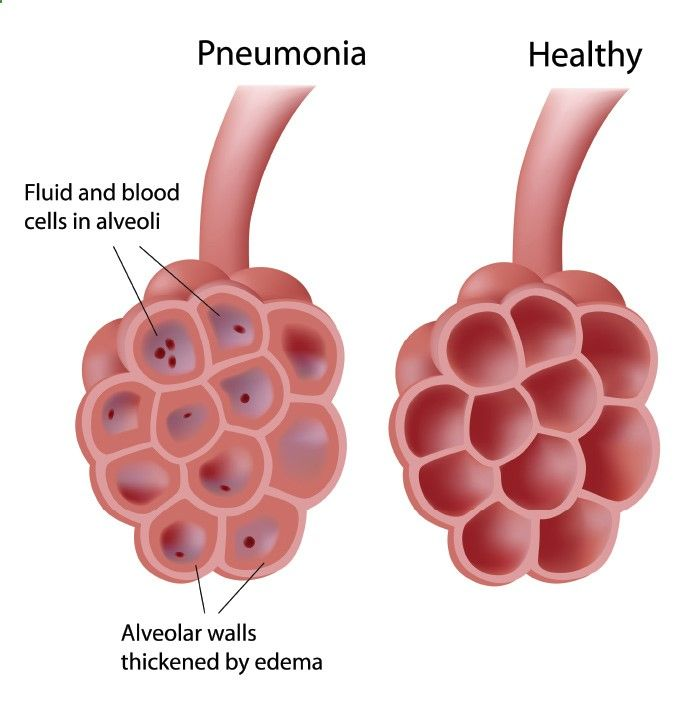The Low Down On Pneumonia The basic medical breakdown concerning pneumonia is a viral or bacterial infection within the lungs. This infection in turn affects the alveoli, which are the air sacs in the lungs, by filling it up with sticky mucous. As the sacs are over-run with mucous, breathing becomes really difficult, where other symptoms such as fever, coughing, shortness of breath as well as fatigue and lethargy may set in.