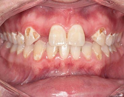 1000+ Ideas About Meth Mouth On Pinterest  Meth Symptoms. Tremors Signs. Fence Signs Of Stroke. Red Foot Signs. Panic Attack Signs Of Stroke. Cold Weather Signs. Ohm Signs Of Stroke. 13th Signs Of Stroke. Raised Mole Signs