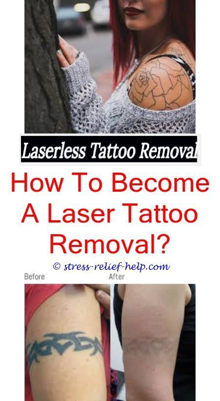 Tattoo Excision How To Get A Tattoo Removed Can You Get Laser