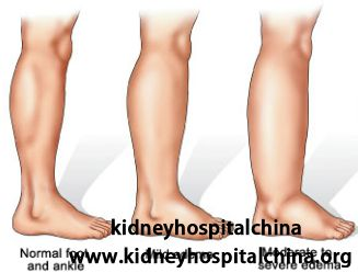 Renal edema, or swelling, is a common symptom in kidney failure, and patients need to pay attention to the symptoms and take early treatment to control it. In the following article, we will get further understanding of the edema in kidney failure. What should you know with renal edema in kidney failure?