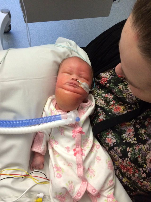 Baby Who Was Born With a Massive Neck Tumor Celebrates First New Year   - Redbook.com
