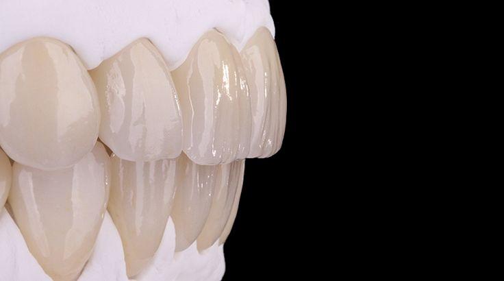 Complete maxillary and mandibular rehabilitation using Prettau® Anterior - by Manfred Pörnbacher