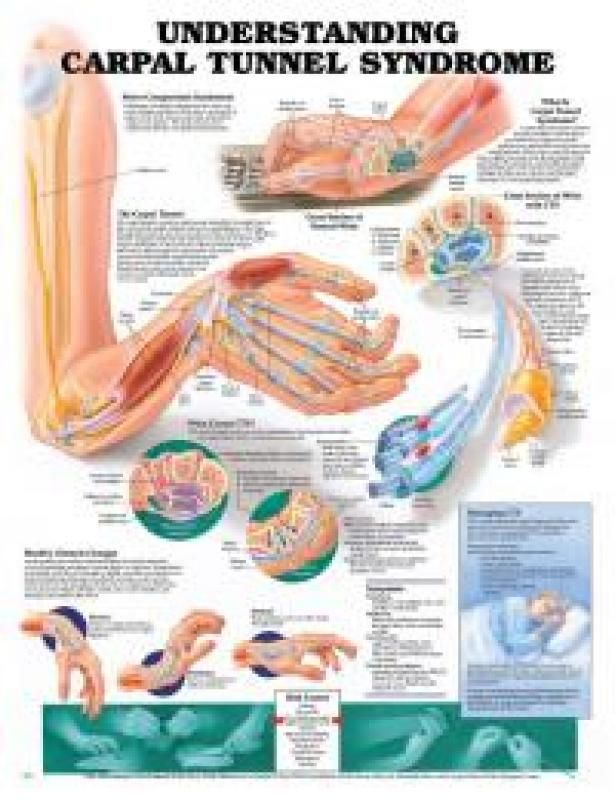 17 best images about carpal tunnel syndrome on pinterest