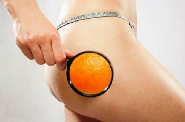 A narancsbőrtől nem egyszerű megszabadulni, de ha ezt kipróbálod megdöbbentő változást fogsz tapasztalni!