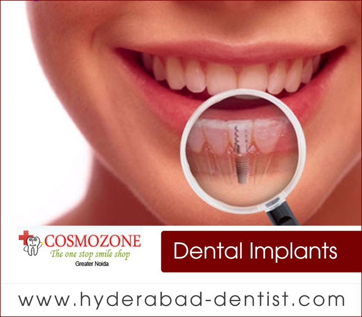 Rediscover Your Smile and Confidence. Dental Implants can increase Your Quality of Life. For More Details: goo.gl/Tf2ZAJ