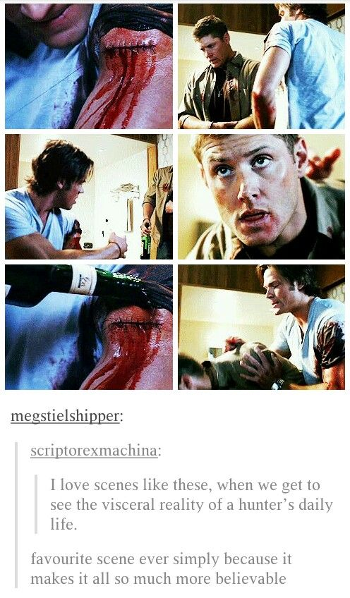 "They never did skimp on the blood, but seeing this just...yeah. There is nothing pretty about being a hunter. Remember in ""Changing Channels"" when Sam was going to stitch Dean up and he said he needed dental floss and whiskey? I now want to learn to do ""meatball"" surgery using those tools. Not good."