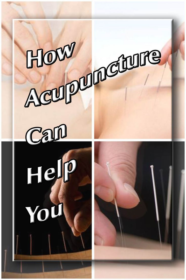 Acupuncture An Alterative To Traditional Medical Care