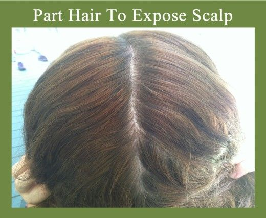 Scalp Psoriasis can be remedied with natural treatments. One way to help relieve psoriasis of the scalp is with a tea tree and olive oil treatment that you massage onto your head and leave for about an hour. This article has a description and step-by-step photos on how you can use this particular natural treatment for scalp psoriasis.