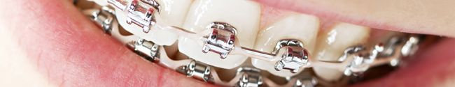 Orthodontics is the study and treatment of malocclusions (improper bites) because of tooth irregularity, disproportionate jaw relationships or both. Metal wires and brackets are used to correct crowded teeth, protruding teeth, gaps, deep bites, cross bites, overbites. This treatment in not just cosmetic but also improves the health of the jaw bones and facial muscles....