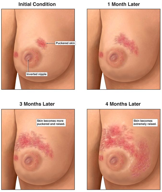 fever and breast cancer