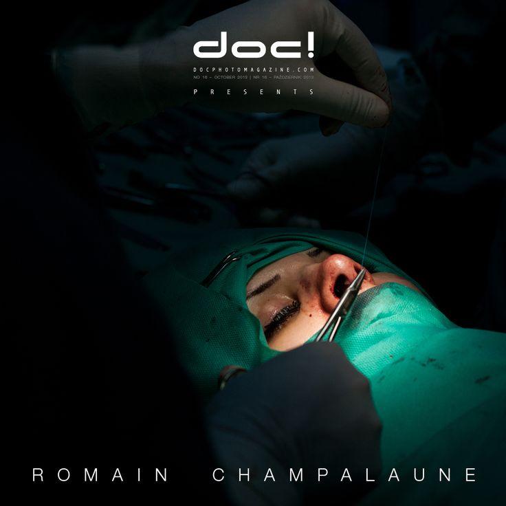 "doc! photo magazine presents: ""Nose Job"" by Romain Champalaune, doc! #16, pp. 153-171"