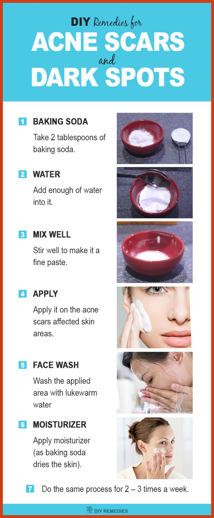 how to get rid of fresh acne scars
