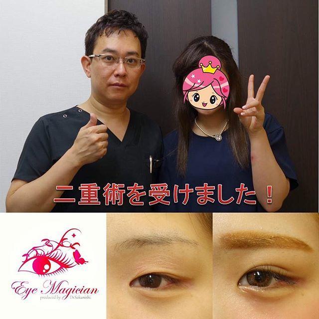 2016/11/10 08:42:19 eye_magician 症例写真:兵庫県在住、19歳、学生 ✨グランドライン法®(特殊埋没6点法)✨ 2年連続 日本美容外科学会で発表し大人気🎉 アンケート調査で98%の満足度(2016年発表) 腫れない・バレない・戻らない 究極の埋没法二重術を目指して👍 http://ameblo.jp/saka24x/entry-11594319477.html グランドライン法®は1本の糸を特殊な方法で皮膚側に6点で固定し、糸玉を結膜側に埋め込みます。 そのため、術後の腫れが少なく、目を閉じても全く分からない、究極に長持ちする二重ラインになります👀 人気の秘密はこれですね😆 スッピンでも綺麗な二重、手に入れませんか💕 0120-832-900 #埋没法#埋没#二重になった#二重になりたい#二重術#二重まぶた#アイプチ#アイテープ#メザイク#グランドライン法#坂西#湘南美容外科#兵庫#神戸#三宮#東京#品川#腫れない#美容整形#美容外科#美容#整形#整形メイク#整形したい#整形前#整形疑惑…