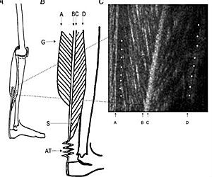Schematic drawings of the gastrocnemius muscle