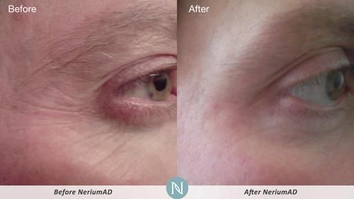 how to use nerium day and night cream